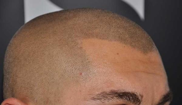 Come fare una maschera per accelerazione di crescita di capelli