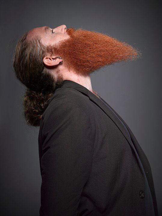beardtrea