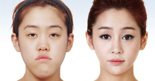 Before And After Of South Korean Cosmetic Surgery 1