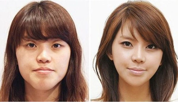 Before And After Of South Korean Cosmetic Surgery 10