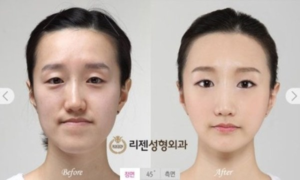 Before And After Of South Korean Cosmetic Surgery 11