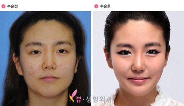 Before And After Of South Korean Cosmetic Surgery 12