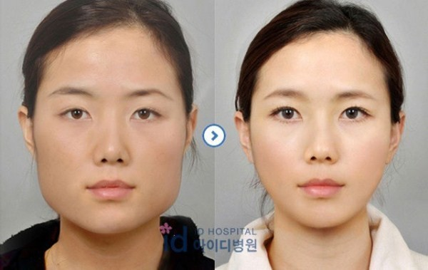 Before And After Of South Korean Cosmetic Surgery 13