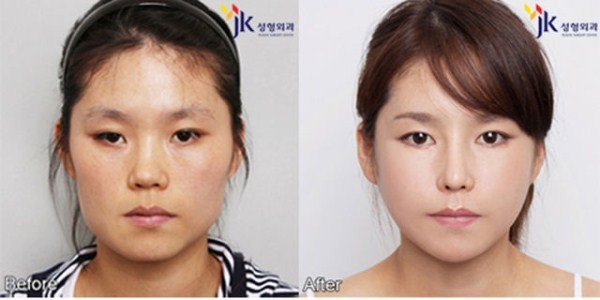 Before And After Of South Korean Cosmetic Surgery 2
