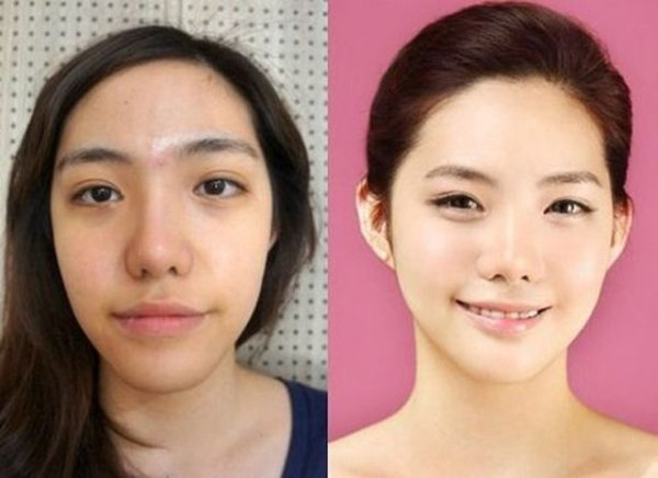 Before And After Of South Korean Cosmetic Surgery 3