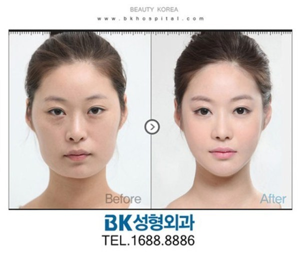 Before And After Of South Korean Cosmetic Surgery 4