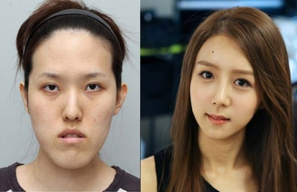 Before And After Of South Korean Cosmetic Surgery 5