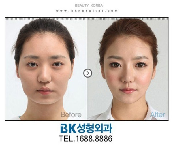 Before And After Of South Korean Cosmetic Surgery 6