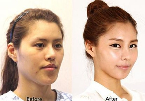 Before And After Of South Korean Cosmetic Surgery 8