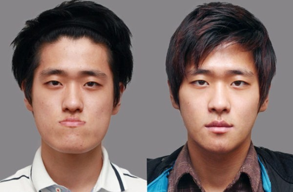 Before And After Of South Korean Cosmetic Surgery 9