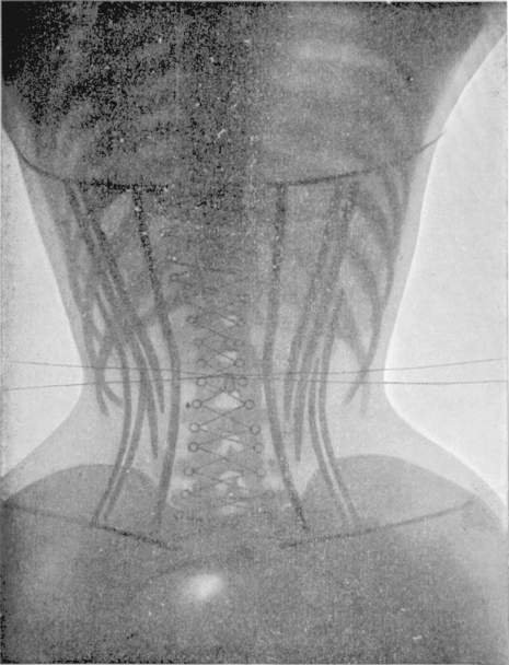 corset111111