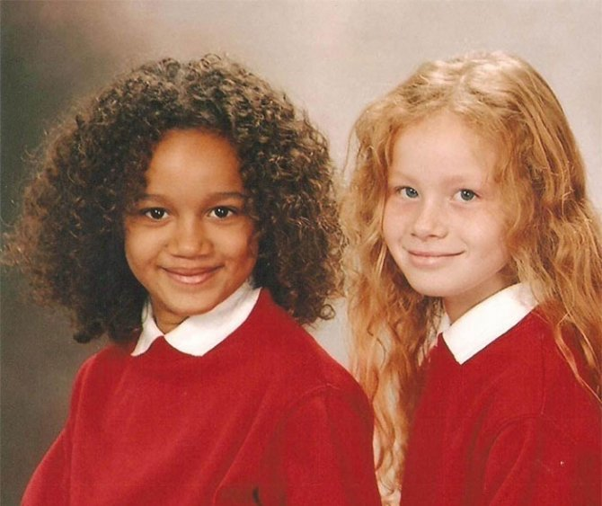 black white skin twin sisters lucy maria aylmer 18