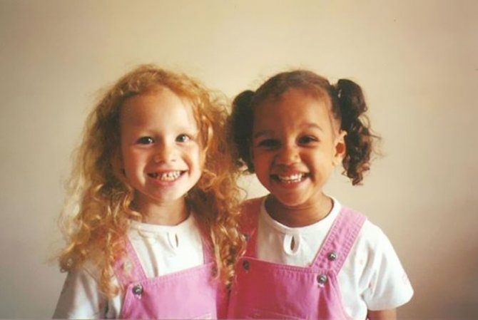 black white skin twin sisters lucy maria aylmer 8