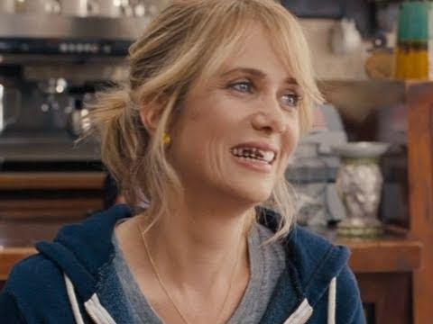 dental work