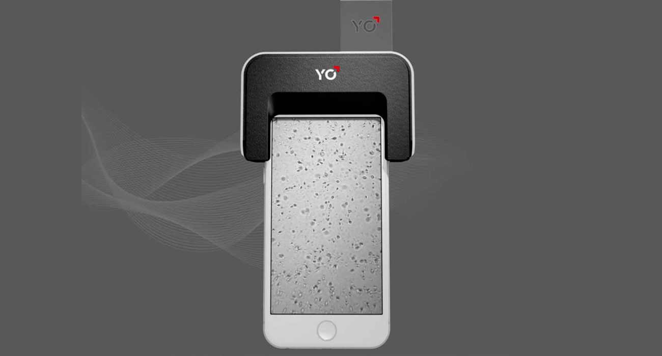 YO Sperm Test mette alla prova la tua fertilità con lo smartphone